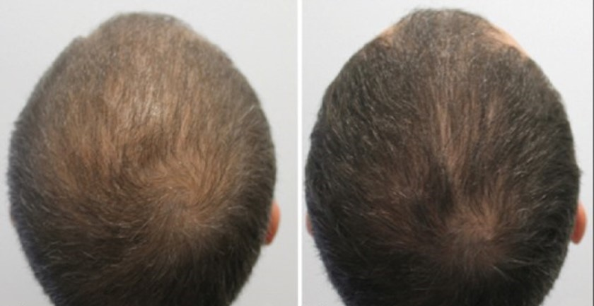 Before After Alopecia Man