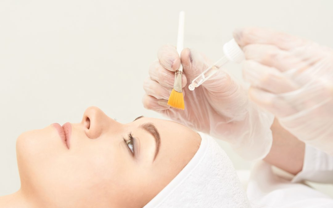 CHEMICAL PEELS FOR SKIN REJUVENATION